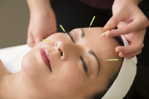 Cosmetic acupuncture At the Dispensary in North Melbourne
